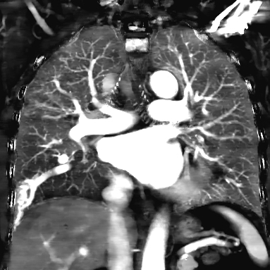 Iodine map in the coronal plane nicely illustrates the pulmonary AVM and adjacent perfusion defect. This is because of blood (and iodine) shunting into the low pressure system, and results clinically in hypoxemia, that then sets off compensatory mechanisms resulting in polycythemia.