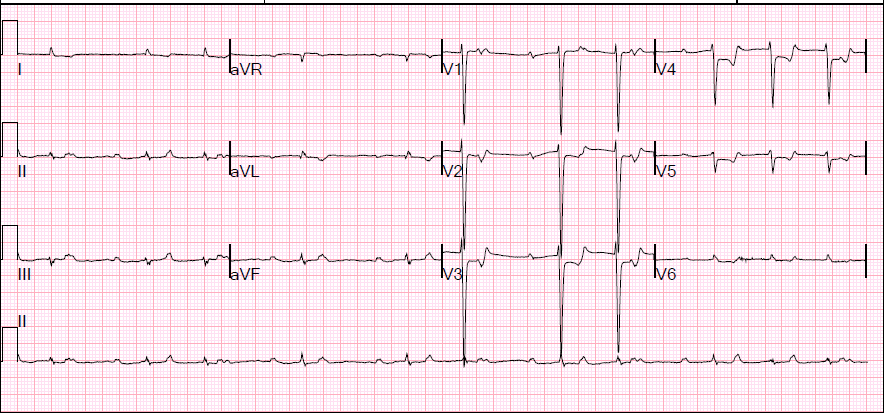 First EKG: Note extensive ST depressions (most marked in V2-V6)