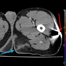 Conventional CT: Bullet (red arrow) in left hip. Entry (blue arrow) in the left gluteal fold. Notice small hyperdensity along the tract.