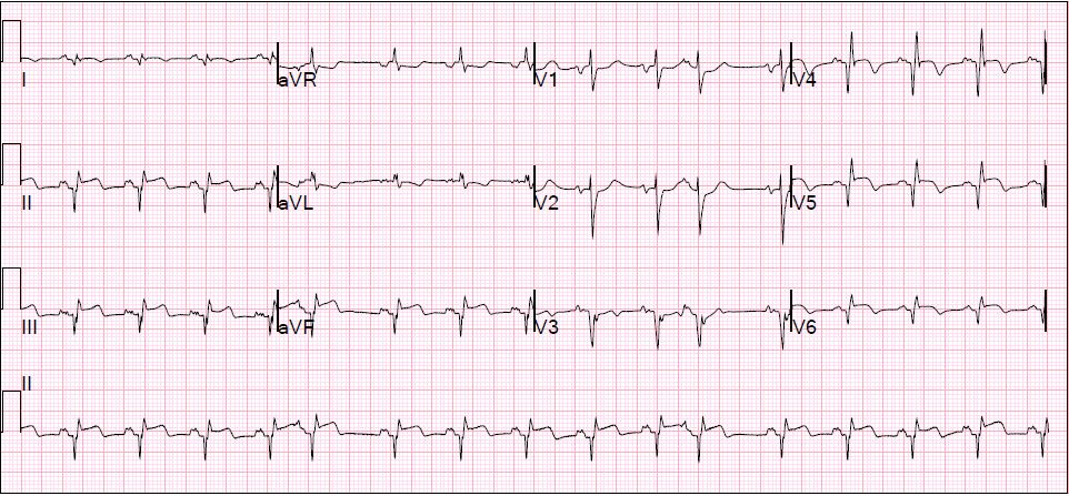 EKG: Very important for radiologists to appreciate the inferolateral MI (just kidding).