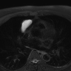 Non-contrast MR (T2-weighted with fat sat): It is indeed a simple cyst!