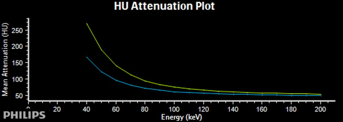 Spectral curves show significant difference between septum (blue) and lateral wall (yellow)