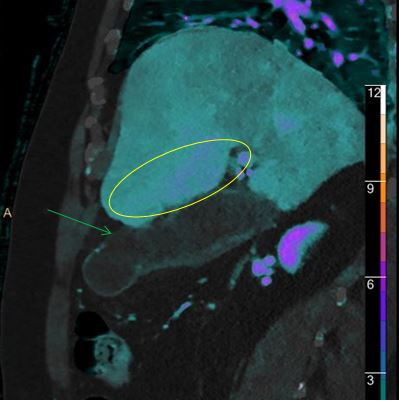 """Iodine overlay shows the """"hole"""" very well (green arrow). For nuclear medicine aficionados, see the enhancement in the liver adjacent to the GB fossa (yellow oval), equivalent to the """"hot rim sign"""" so well known from HIDA scans."""