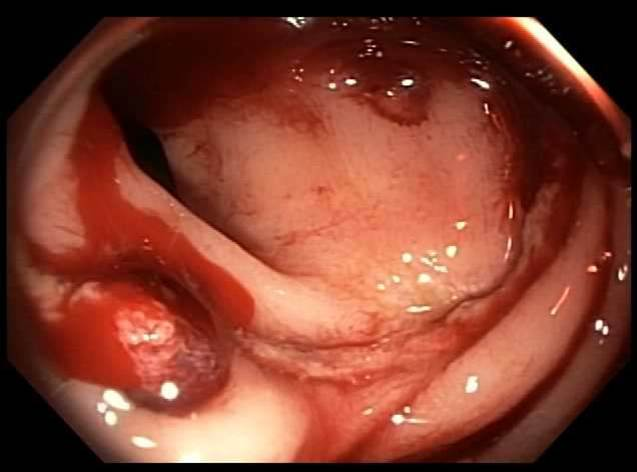Bleeding vessel seen on flexible sigmoidoscopy