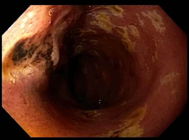 Ulcer in third part of duodenum