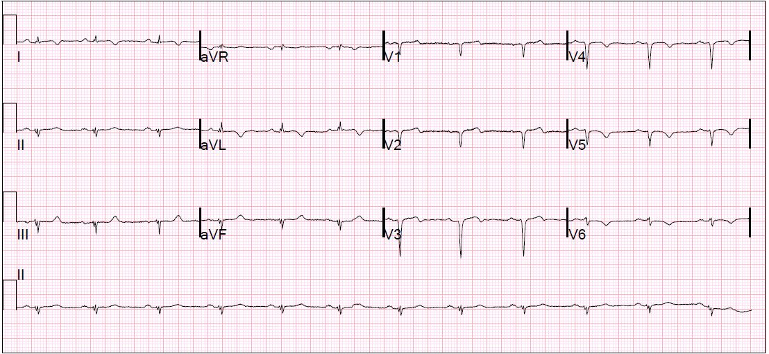 EKG: Read as unchanged from a year prior. No idea what it shows.
