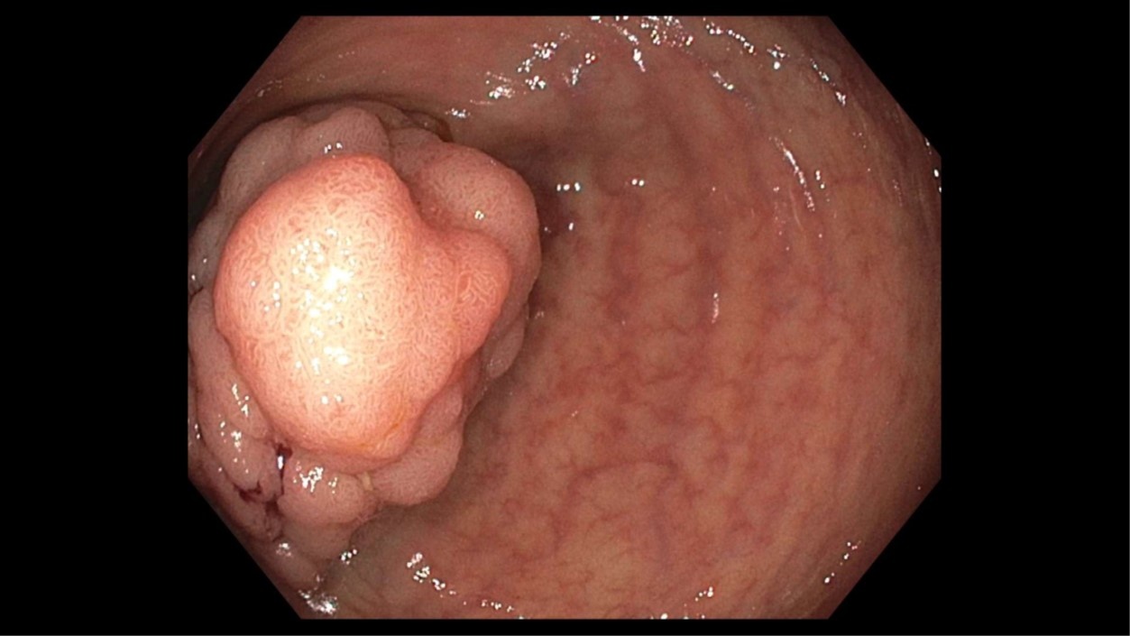 Colonoscopy: Cecal tubular adenoma.