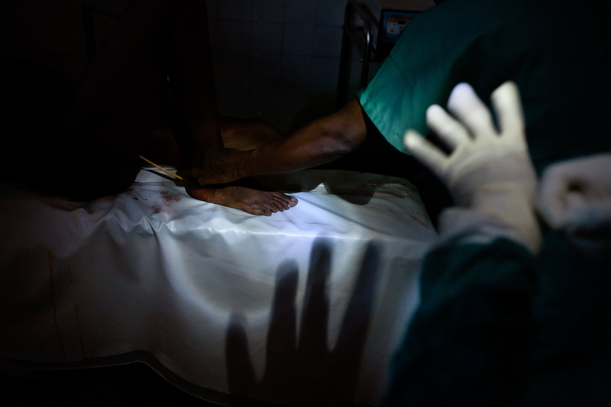 A surgical team performs a c-section during a power cut in Abobo Sud Hospital in Abidjan, Ivory Coast, April 18, 2011. A week after the end of the military standoff in Abidjan, very few hospitals were open.
