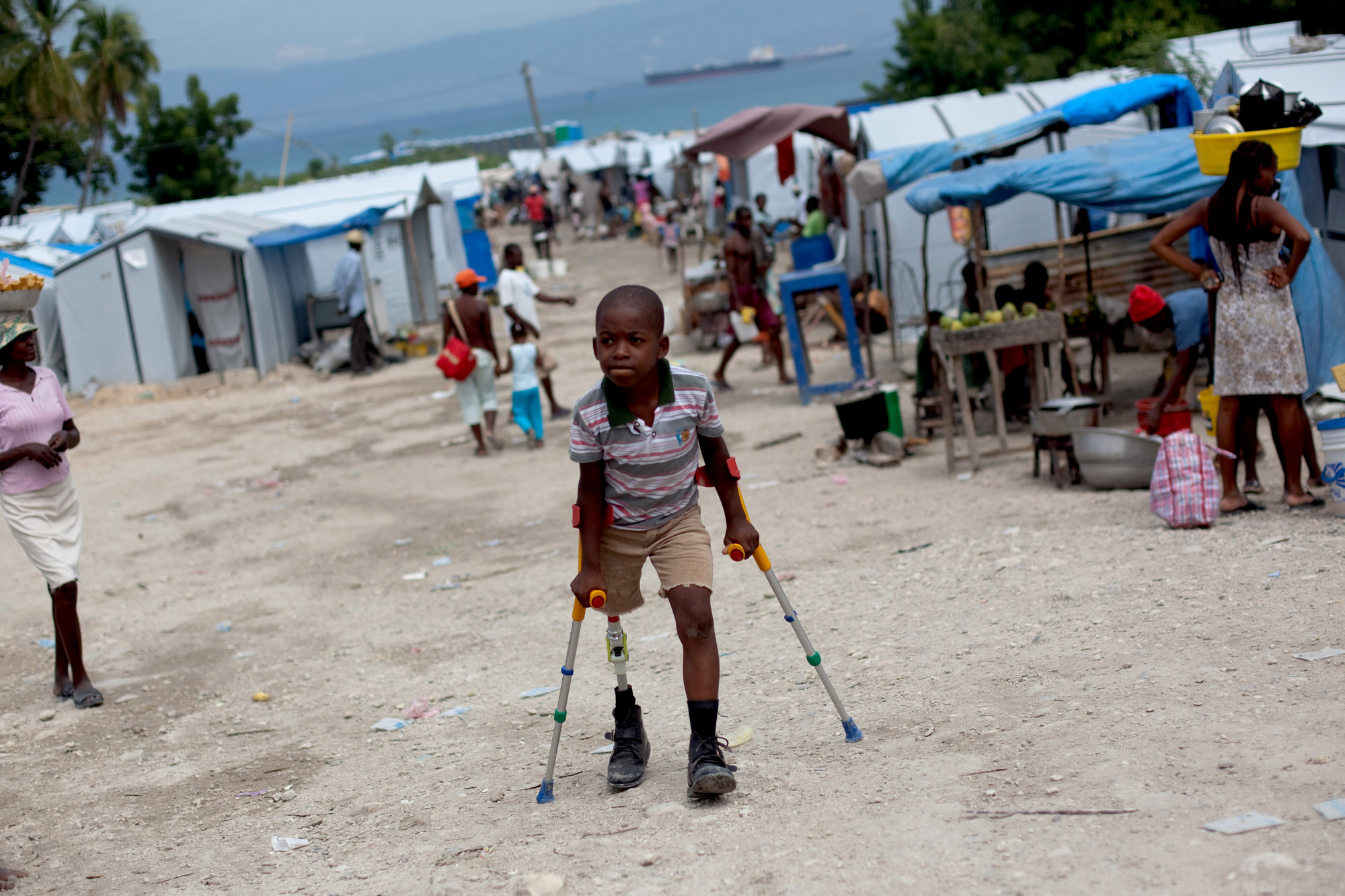 A boy walks with a prosthetic leg and crutches