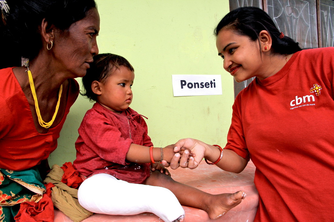 Binita shakes hands with her 2-year-old patient Archana Lama to make her smile, after applying a cast on her right leg, at a hospital in Nepal.