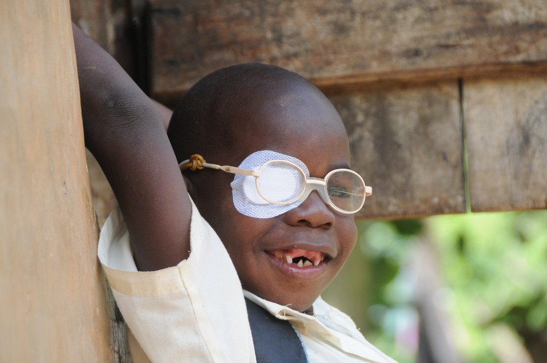 Blessing, 5 years old, with his glasses and a patch on his right eye.