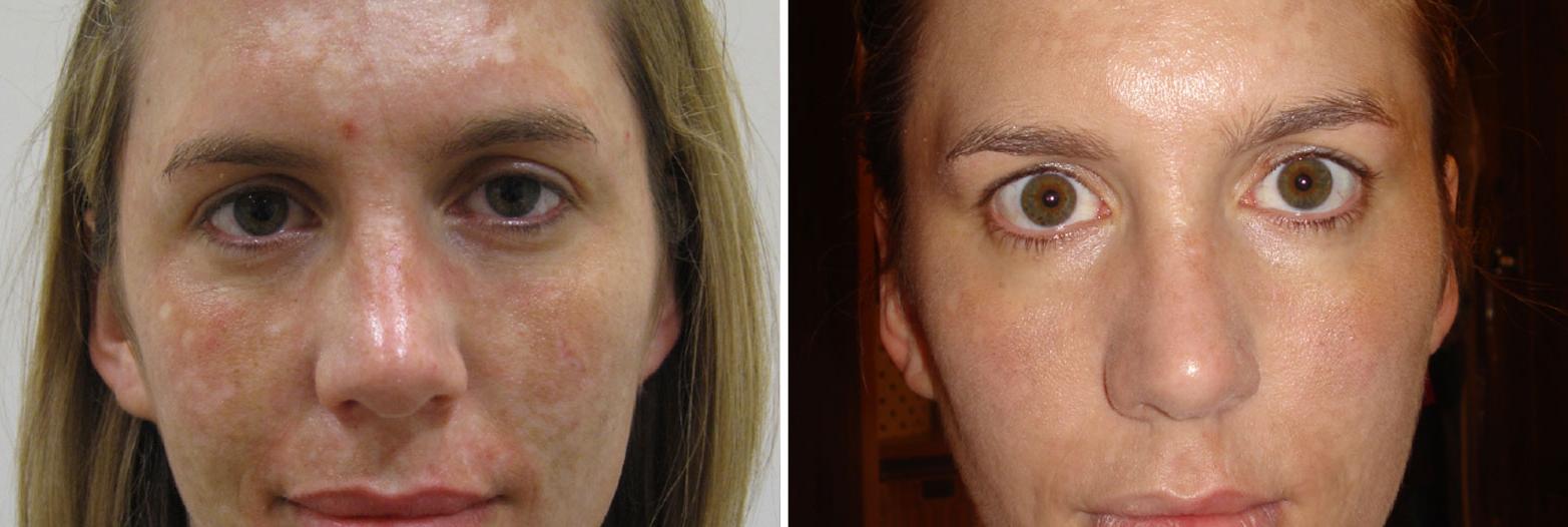 edermastamp-before-after-pigmentation.jpg