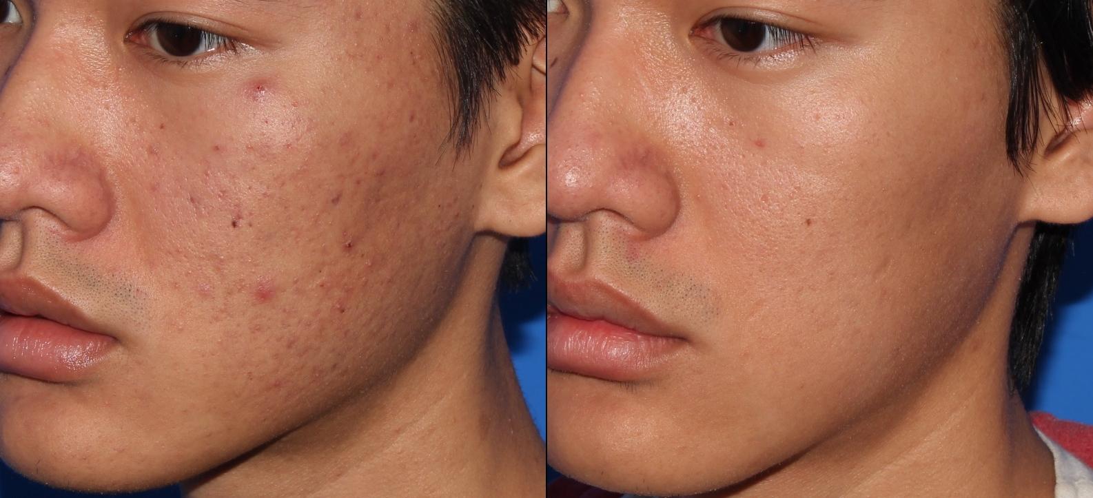 NailaMalikMD_Micropen-acne-scar-treatment-2.jpg