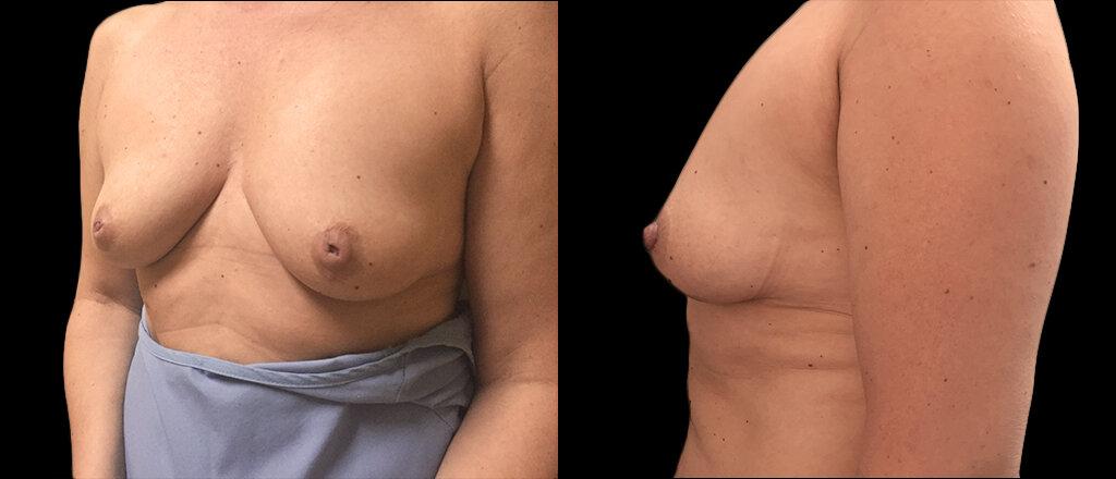 pierderea în greutate mamelon de inversiune