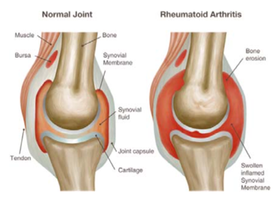 rheumatoid arthritis.png