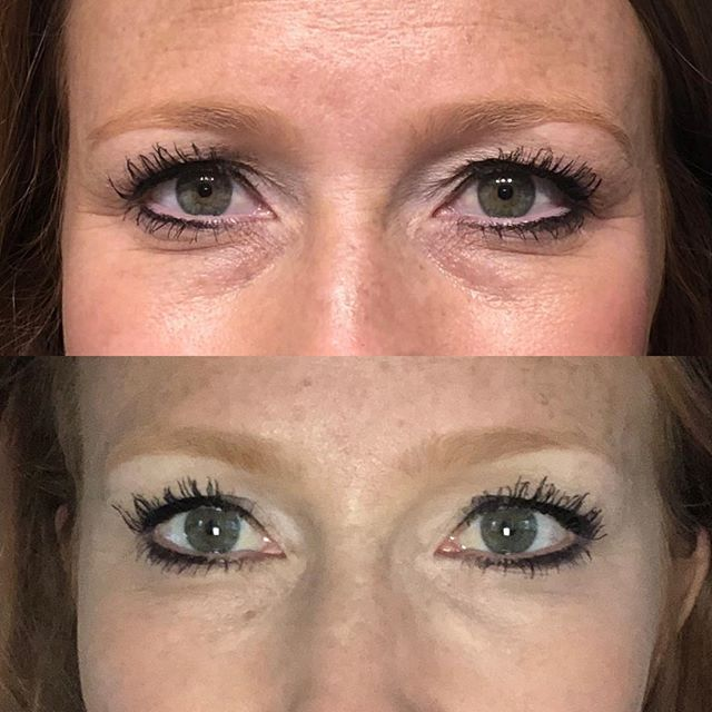This beautiful mother of 3 just texted me her before and after selfies of her under eyes we filled 2 weeks ago. She is ecstatic with her results. The best part is that it will last up to 2 years. Winning. #filler #lessismore #byebyeteartrough #byebyetiredeyes #5280beauty #5280lifestyle #denverbeauty #aestheticphysicianassistant #juvaderm #tmedaesthetics