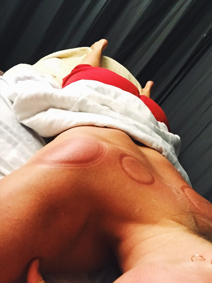 I prioritize touch by healing professionals. A great way to get affordable TCM is to find a local TCM school, and visit their cupping/ acupuncture clinic (I do this 1x week).