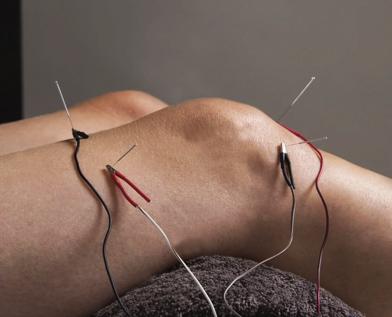 Electroacupuncture -