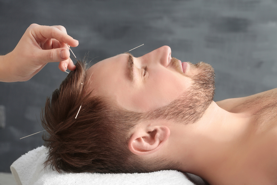 bigstock-Young-man-getting-acupuncture--181931818-FLIP.jpg