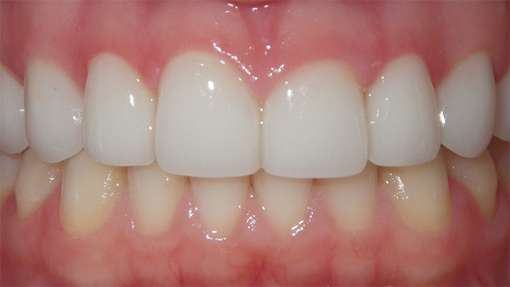 Copy of Upper Porcelain Veneers - Gums are healthy and look great.