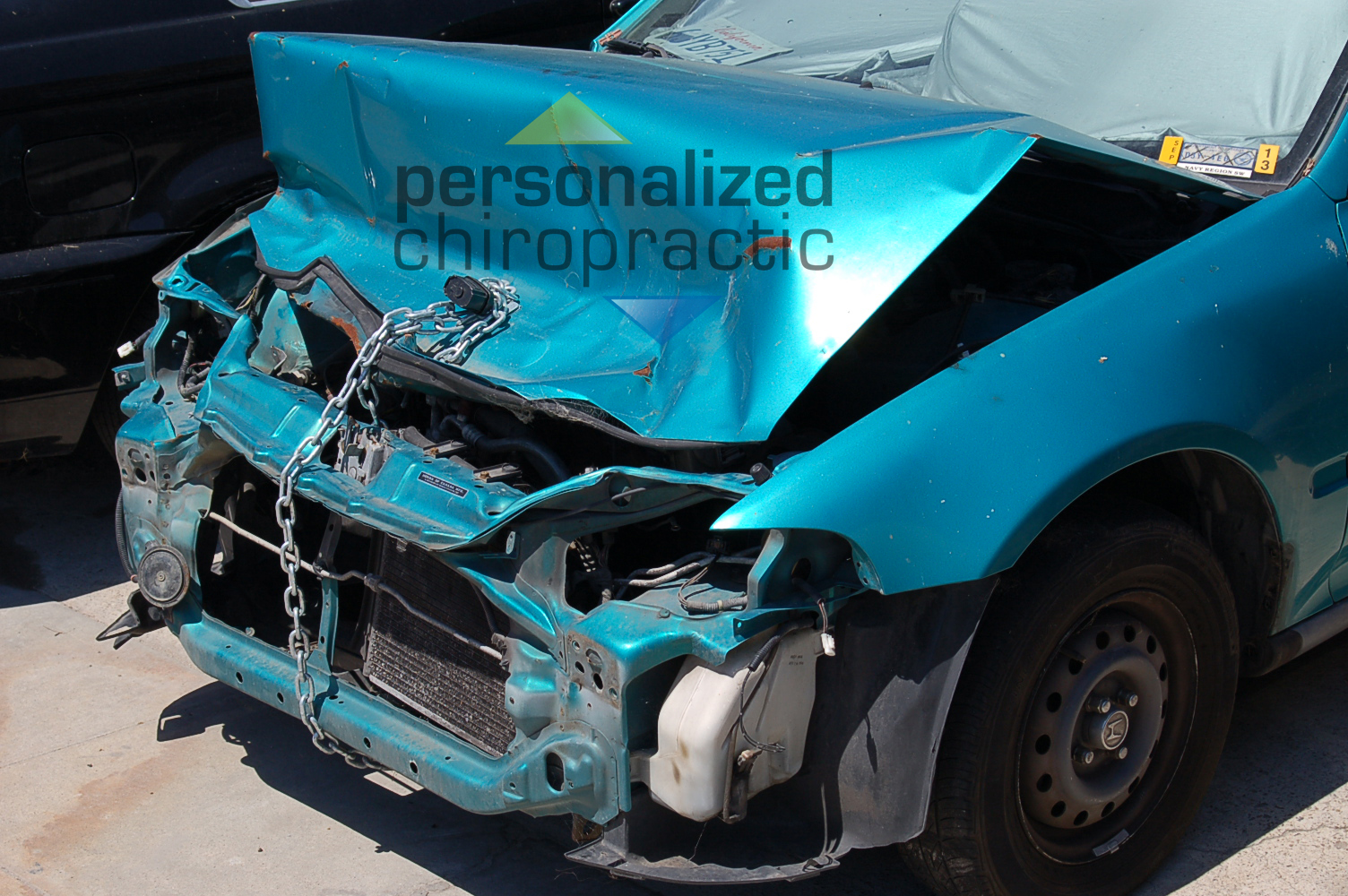 Car Accident Chiropractor - Pacific Beach Chiropractic