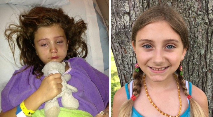 Rylie before cannabis oil, and now today