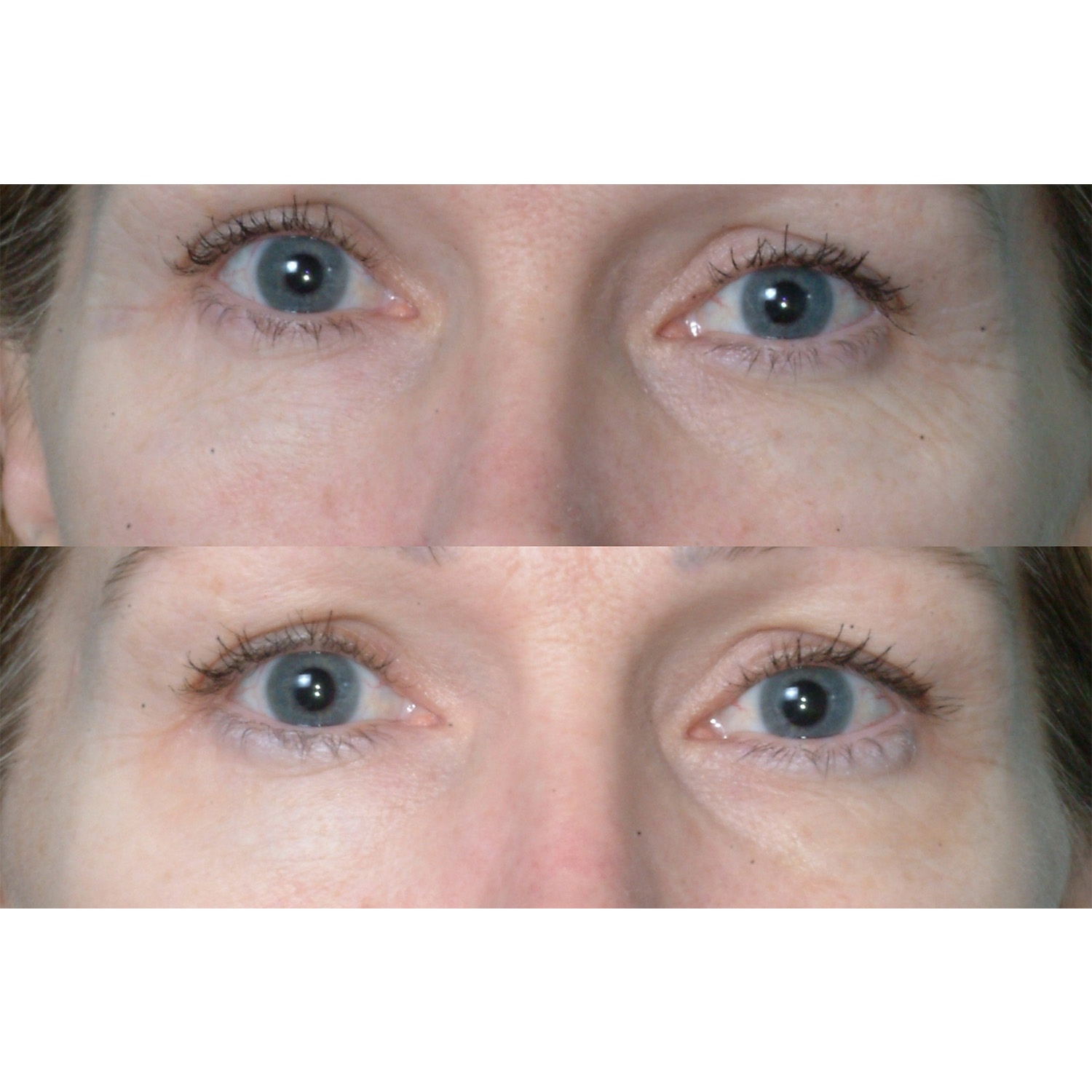 before_after_undereye_square.jpg