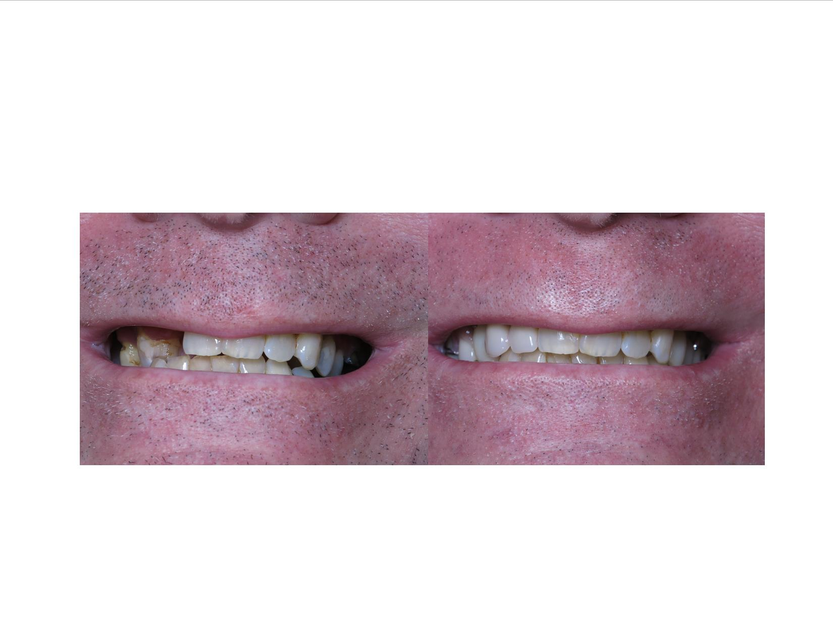 Kris Kane Before& after smile.jpg