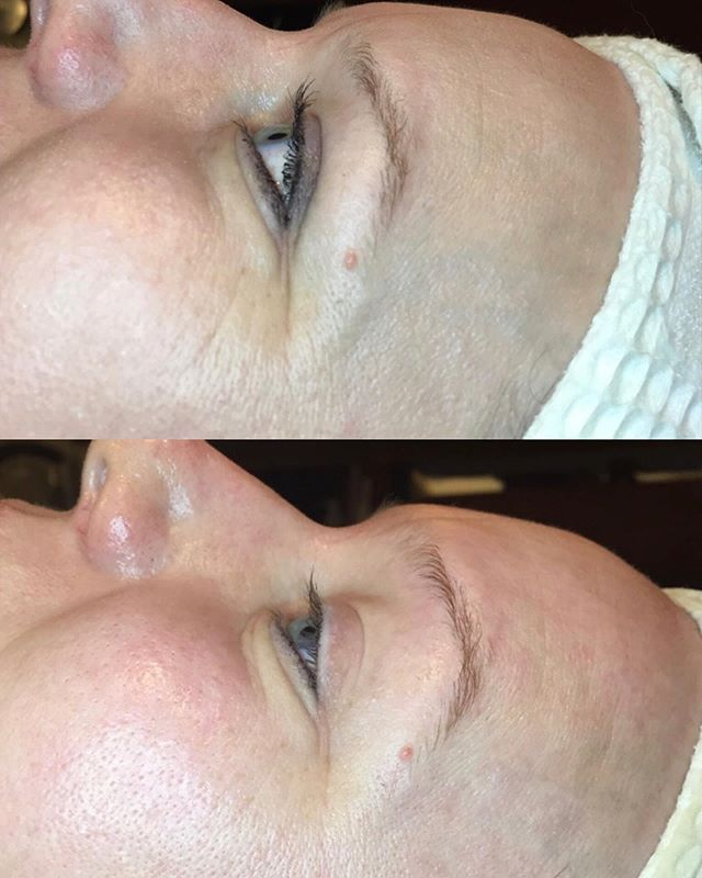 """""""Botox in a box""""📦 🧖🏽♀️ Enjoy anti-aging effects without the needles! Our Botinol facial treatment visibly reduces the appearance of expression lines and wrinkles in ONE service. As an added benefit, your skin looks and feels revitalized as it becomes smoother and more resilient each treatment. • • @amberyouresti_bestie worked with this beauty today to help her reach major anti-aging goals! @gm.collin  #professionalskincare #esthetician #kitsapskincarespecialist #dahlia #skinbydahlia #botoxinabox #antiaging #healthyglow"""