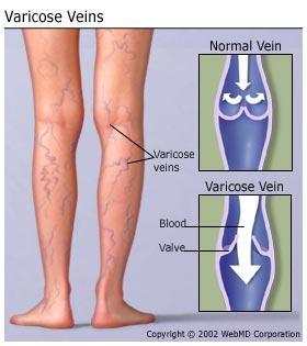 understanding_varicose_veins_basics.jpg