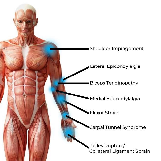 climbing pain anterior.jpg
