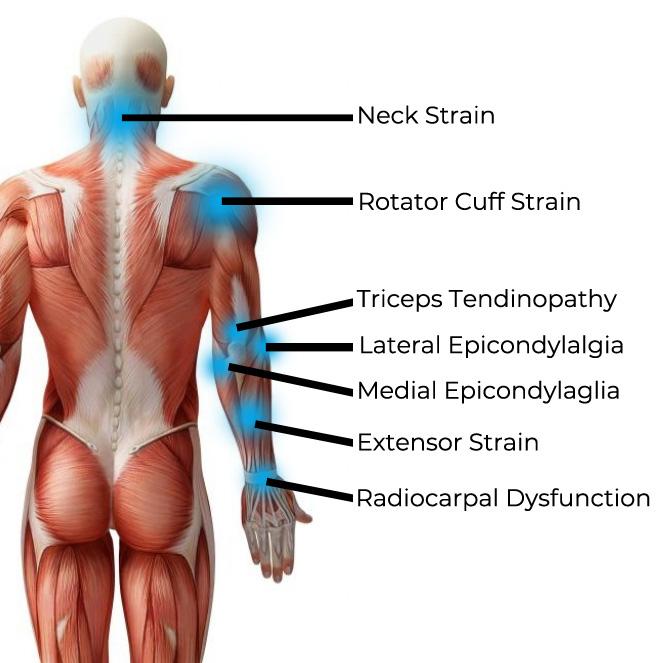 climbing pain posterior.jpg