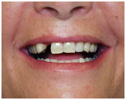 This patient had a dental implant put in to replace their missing tooth.
