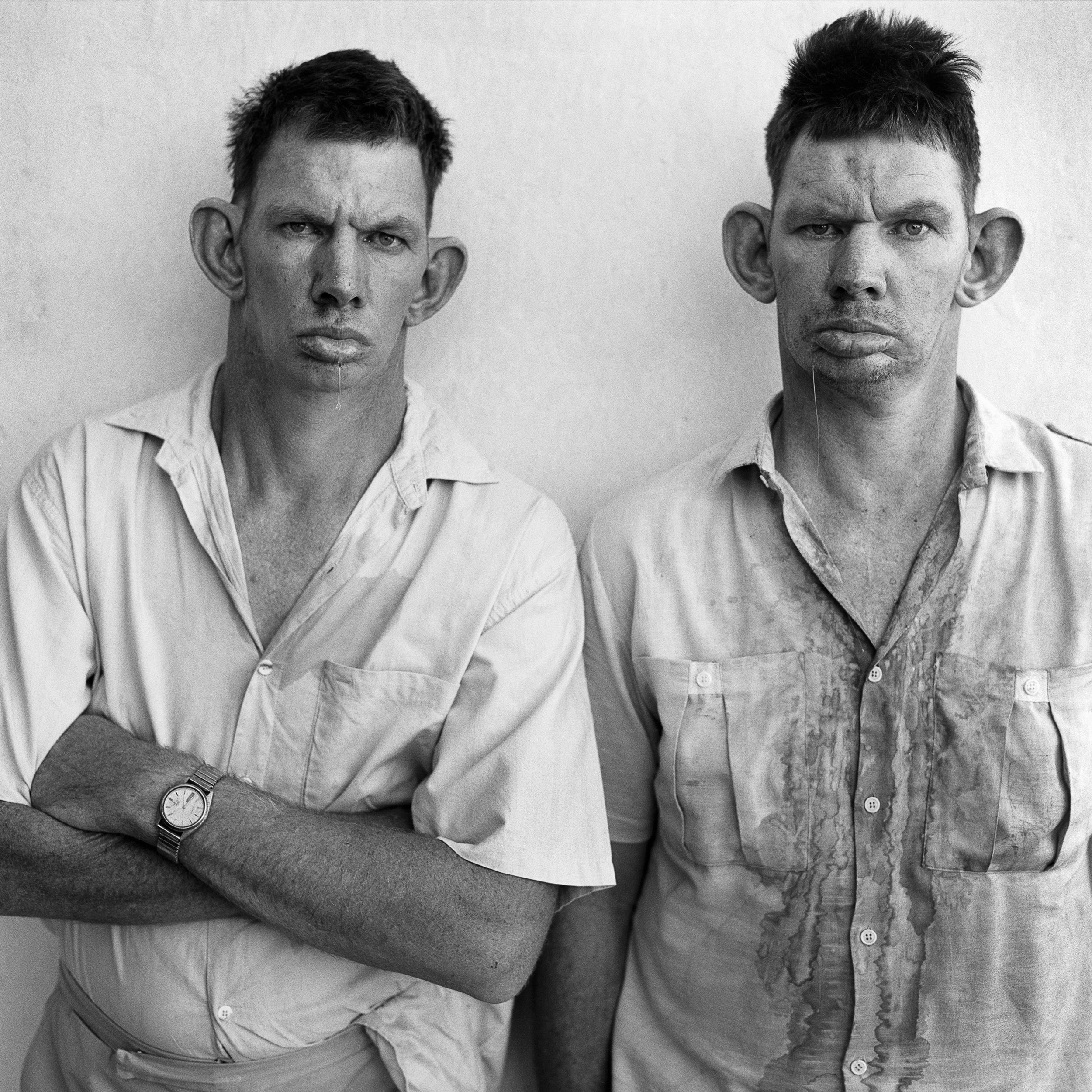 DRESIE AND CASIE, TWINS (1993, WESTERN TRANSVAAL). CREDIT: ROGER BALLEN