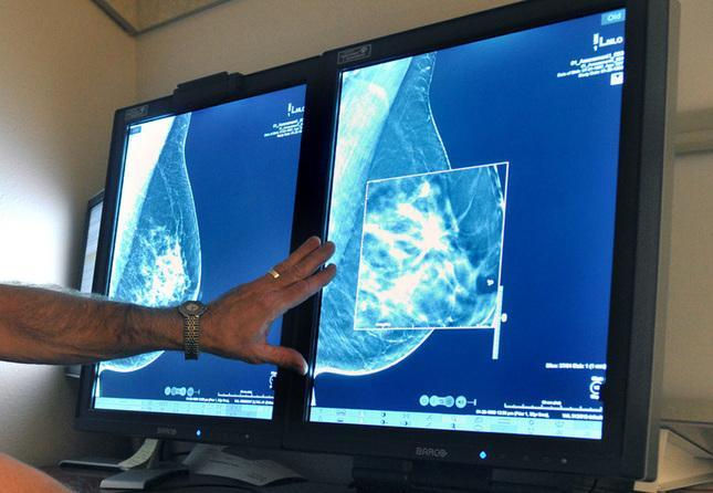 20151020__sjm-mammogram-10211.jpg