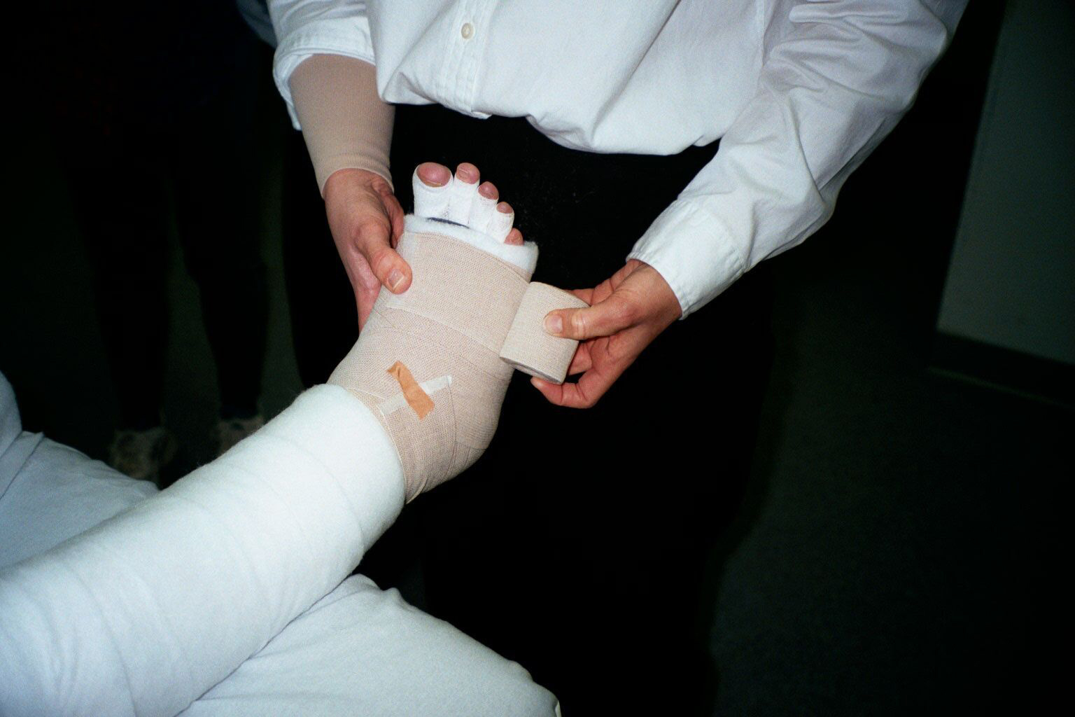 Lympedema Bandaging