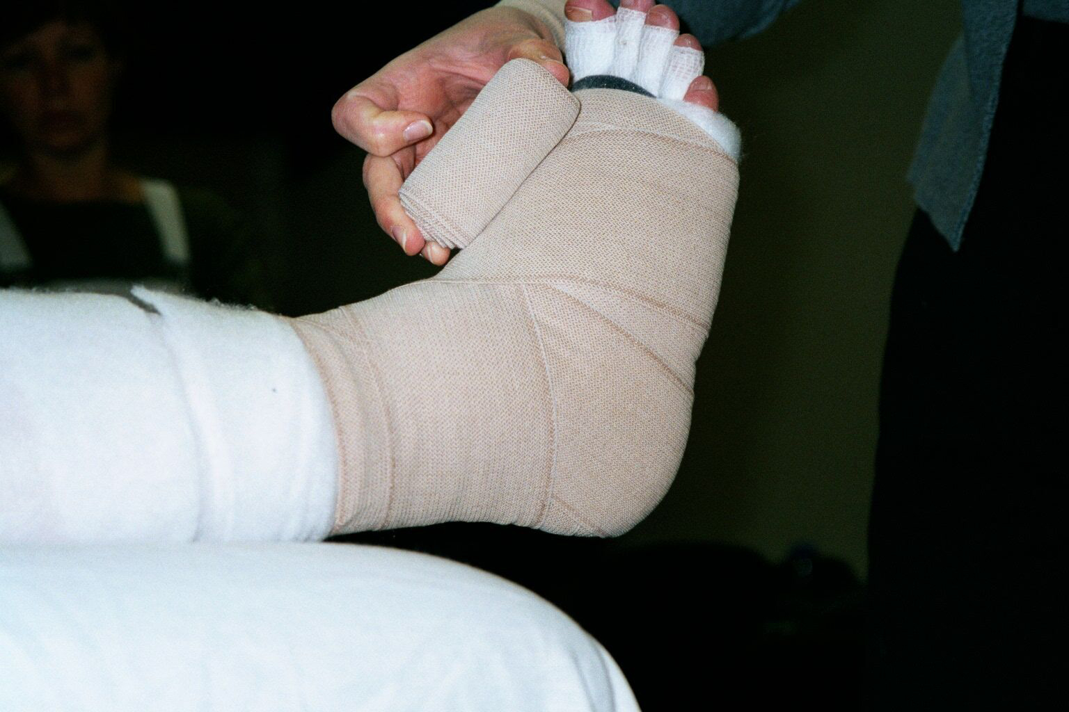 Lymphedema bandaging