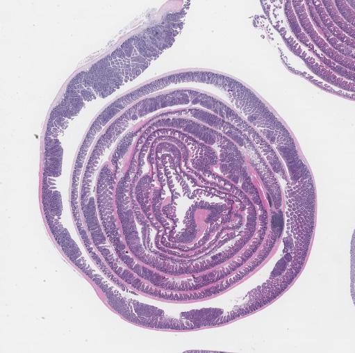 intestine tumors_edited 2.jpg