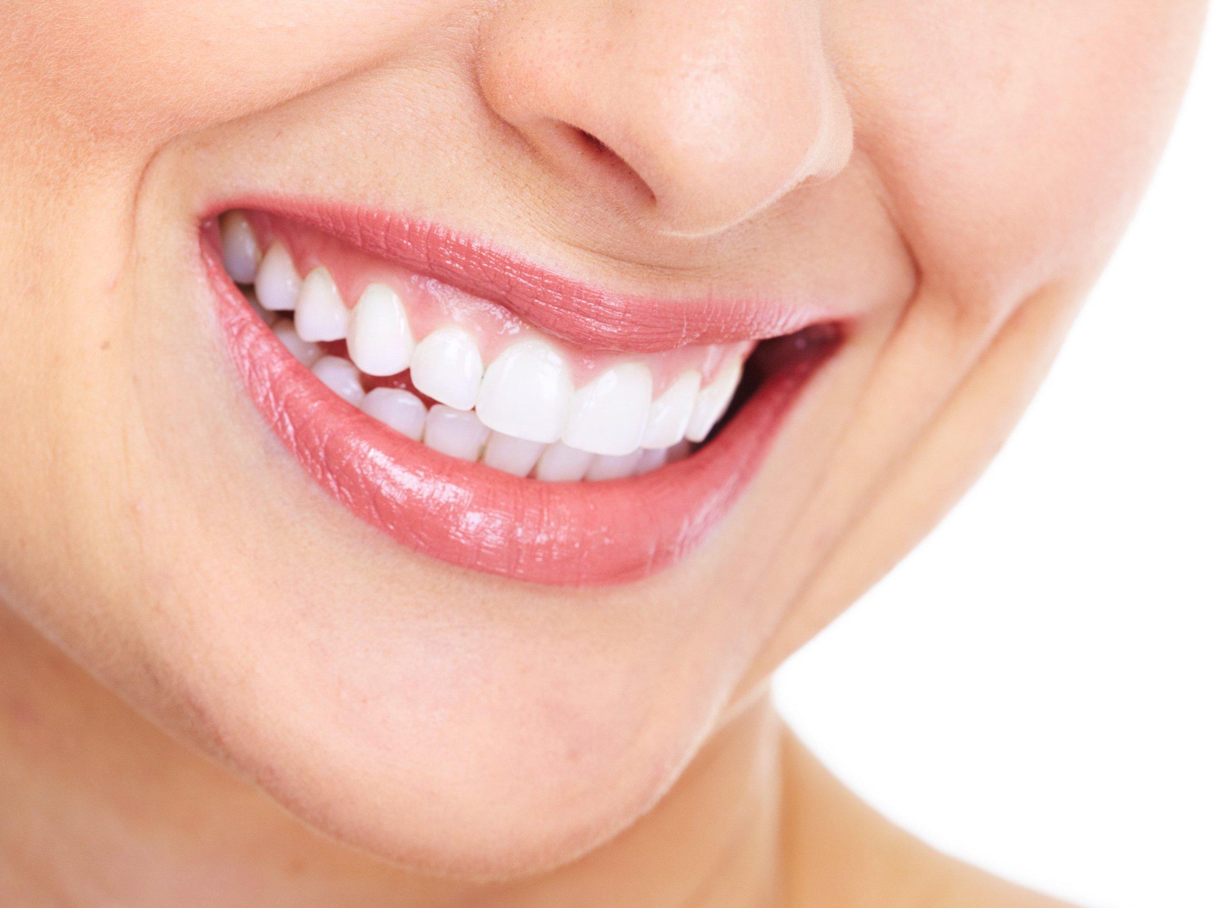 Benefits of Dental Veneers