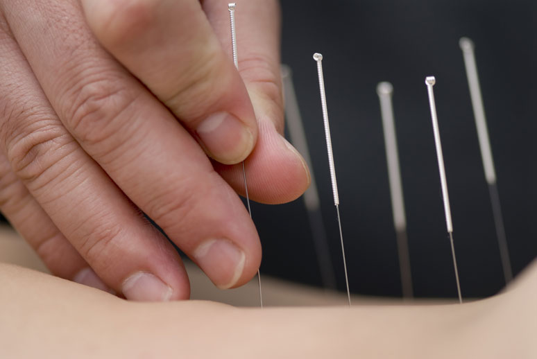 Close up of Dry needles being inserted