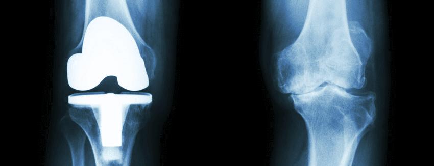 osteoarthritis_image.png