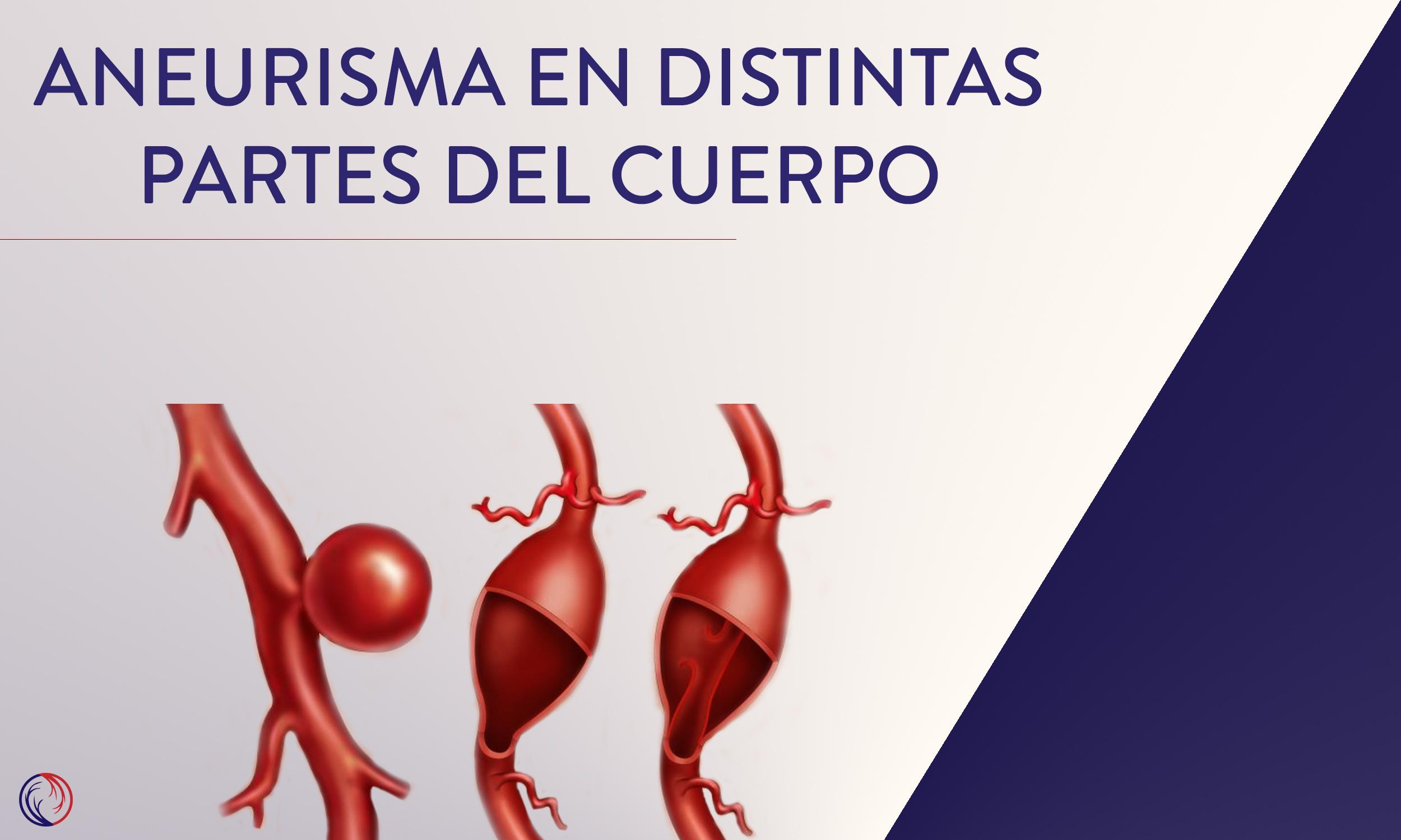Aneurisma en distintas partes del cuerpo