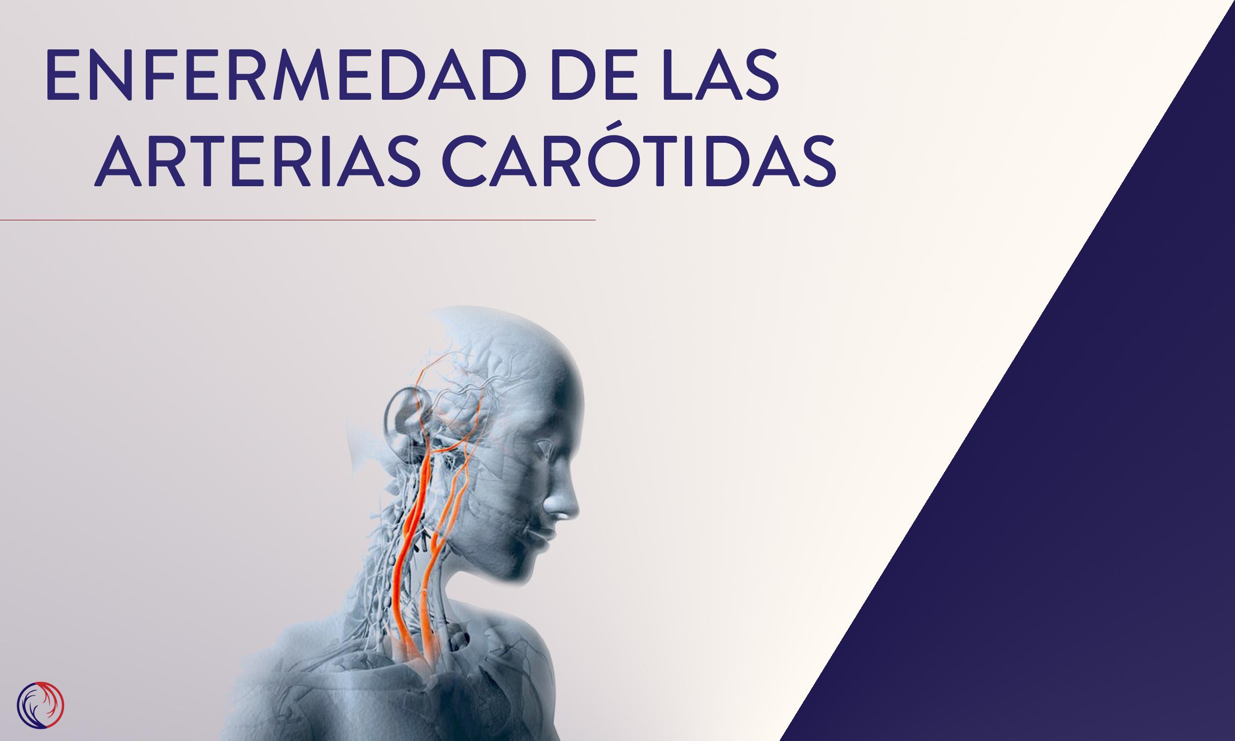 Enfermedad de las arterias carótidas