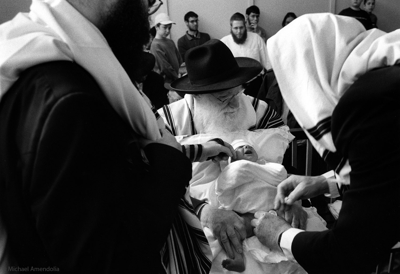 Circumcision Sydney Bondi.