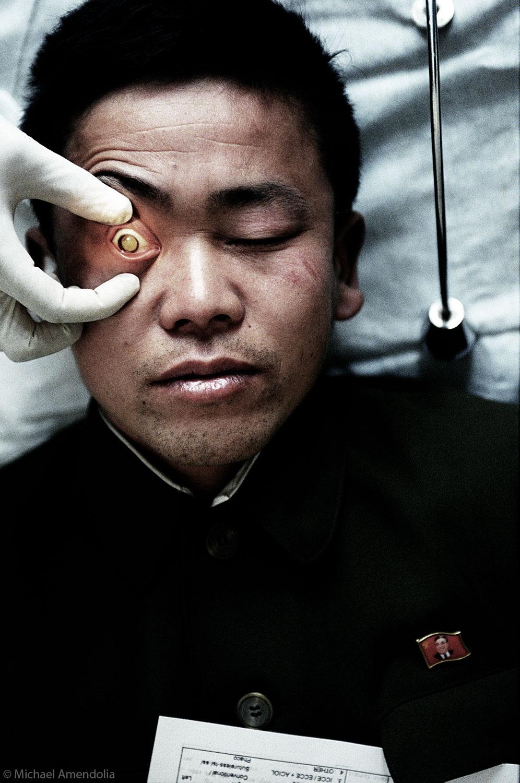 North Korea Blindness