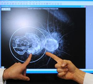 Retina-Surgery-2_300.jpg