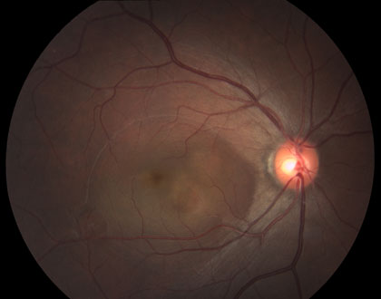 central-serous-choroidopathy_4202.jpg