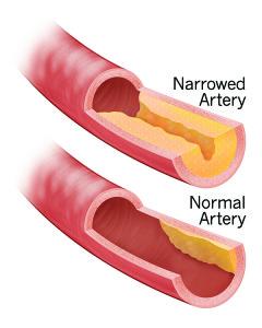Narrowed-Artery-240x300.jpg