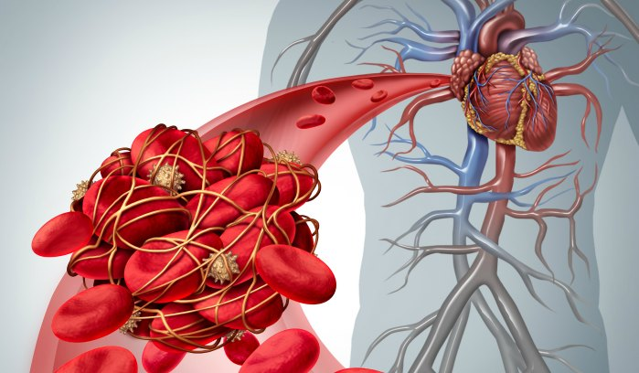 Thrombosis-and-Heart-Banner.jpg