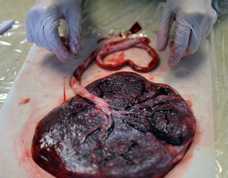 Placenta examination by person with gloved hands